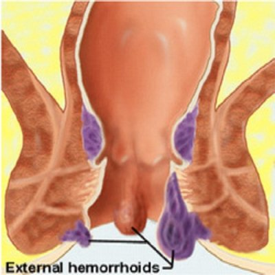 How to Treat and Get Rid of External Hemorrhoids ⋆ Oh Health Yeah